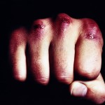 В Карпинске мужчина избил сожительницу. Женщина скончалась