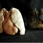 Туберкулез излечим, но лучше им не заражаться