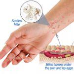 Санитарные врачи о «грибке» в Карпинске: «Ситуация крайне неблагополучная»